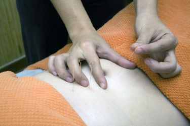 Acupuncture needles are placed into the stomach of a patient