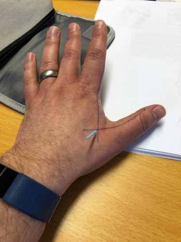 A hand with lines drawn on it and an acupuncture needle between the thumb and index finger